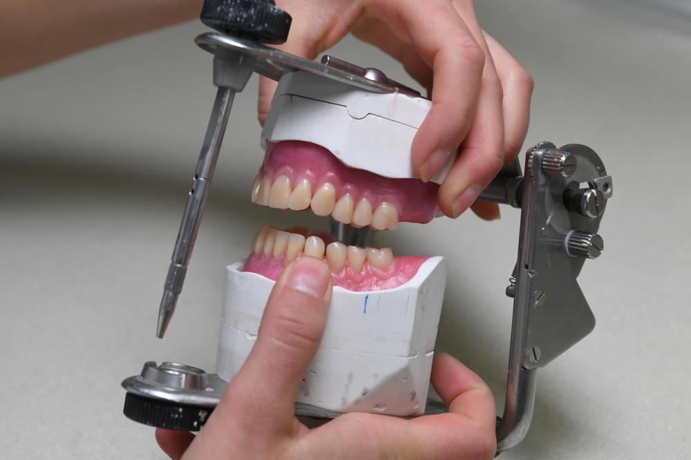 Prothese herstellen